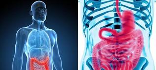 CED: Wenn Bauchkrämpfe und Durchfälle alltäglich werden