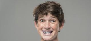 Zahnspangen: Für Kinder normal, für Eltern teuer - WELT