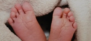 Zahl der Kaiserschnitte deutschlandweit gesunken - am niedrigsten ist sie in Sachsen