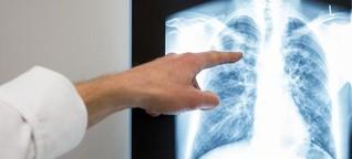 Gefahr durch Krätze und TBC?
