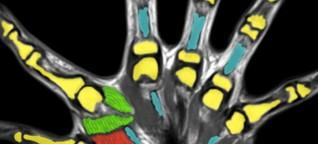 Sechs Finger an jeder Hand