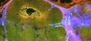 Krebs-Diagnostik - Laserlicht spürt Tumore auf
