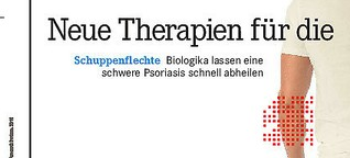 Neue Therapien für die Haut
