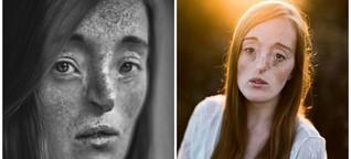 Model mit Gesichtsspalte zeigt, dass jeder Mensch schön sein kann
