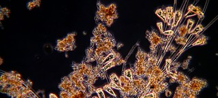 Schönheiten in einer Kläranlage : Mikroorganismen reinigen das Wasser